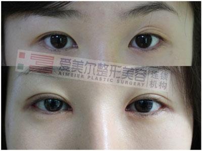 埋线法双眼皮整形需要拆线么